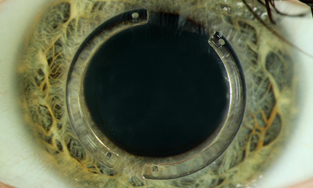 @UKS-Auge mit zwei implantierten intracornealen Ringsegmenten (ICRS)