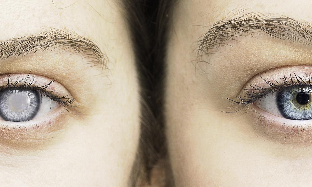 Hoffnung für Glaukom-Patienten? Protrudin hilft bei der Regeneration von Nervenzellen