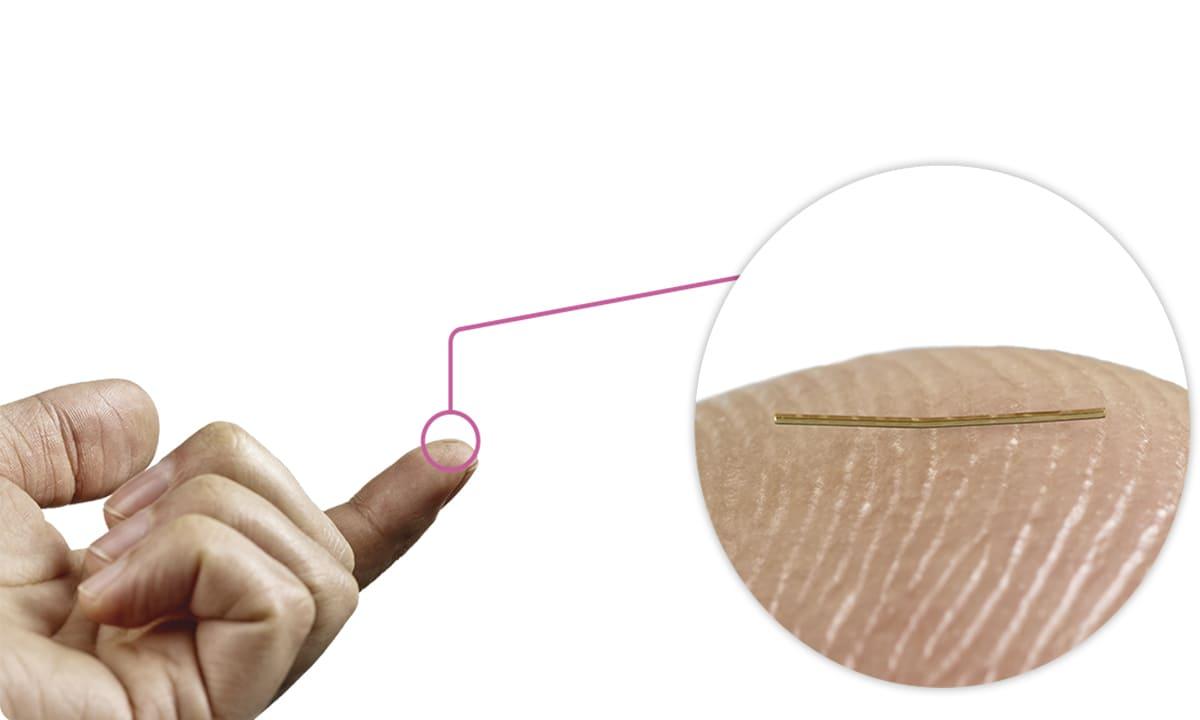 Effektives Glaukom-Management: Progression verzögern, Sehkraft erhalten