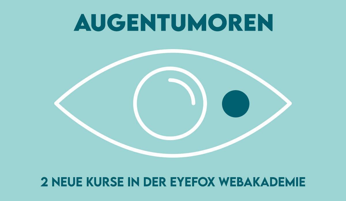 Alles über Augentumoren:  Zwei neue Online-Kurse in der EYEFOX Webakademie