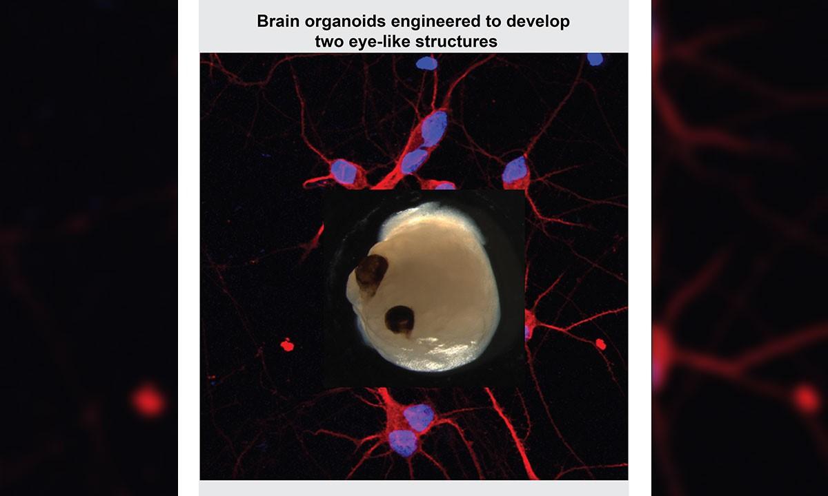 Hirnorganoide entwickeln Sehschalen, die auf Licht reagieren