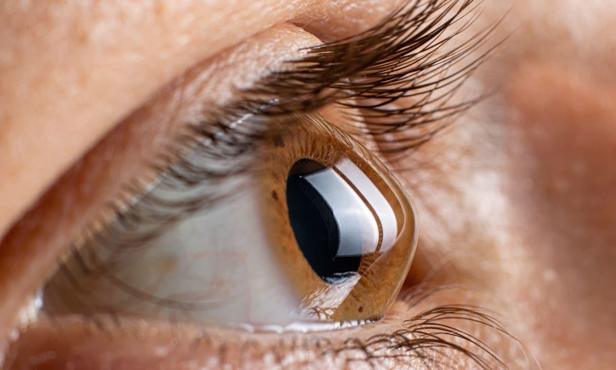 Keratokonus im Fokus – Moderne Therapieoption bei Hornhautveränderungen