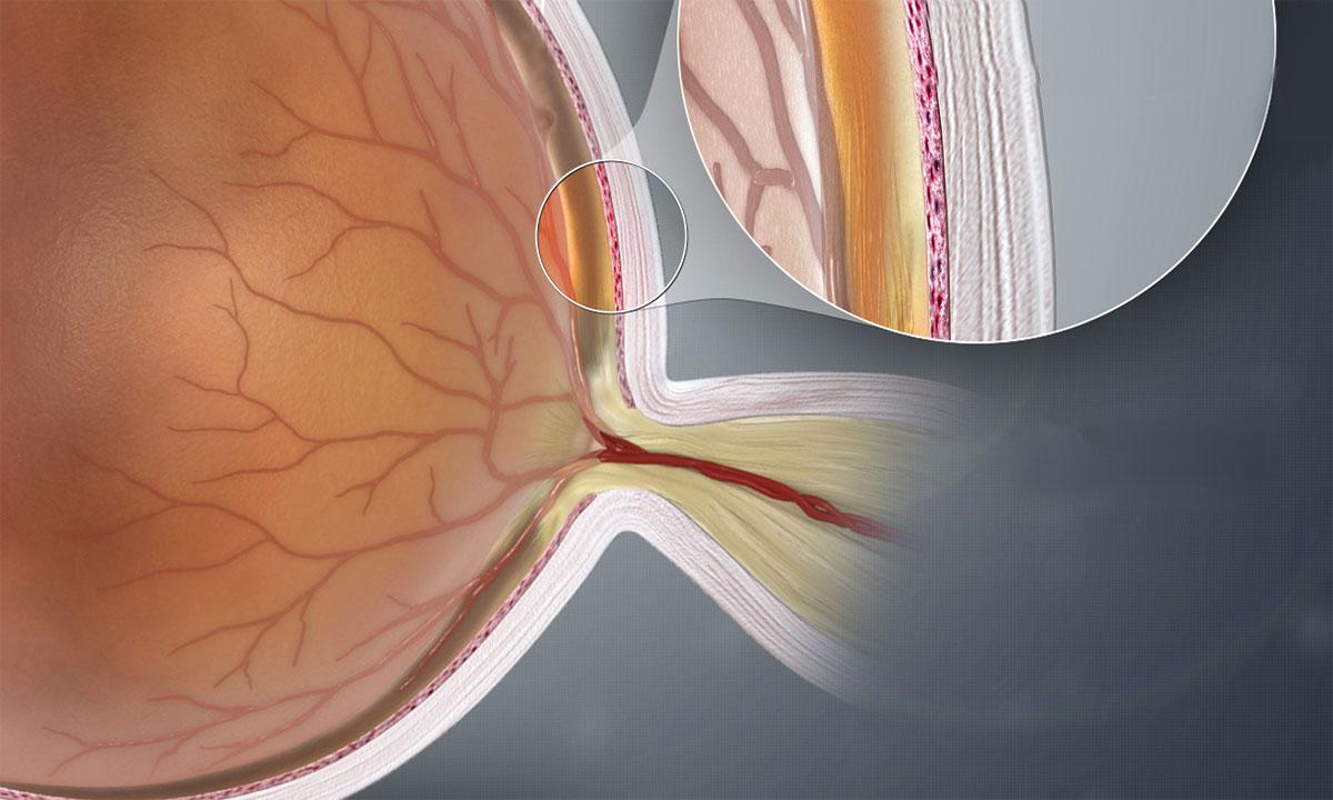 Regeneration des Sehnervs scheint möglich: Hoffnung auf eine Gentherapie für das Glaukom