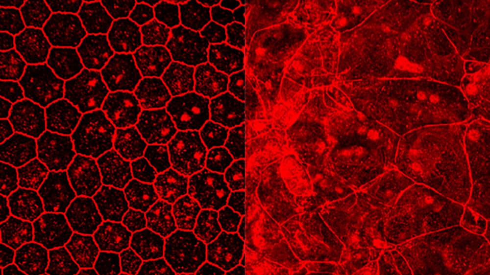Paul-Ehrlich-Institut entwickelt Therapieansatz bei trockener altersbedingter Makuladegeneration