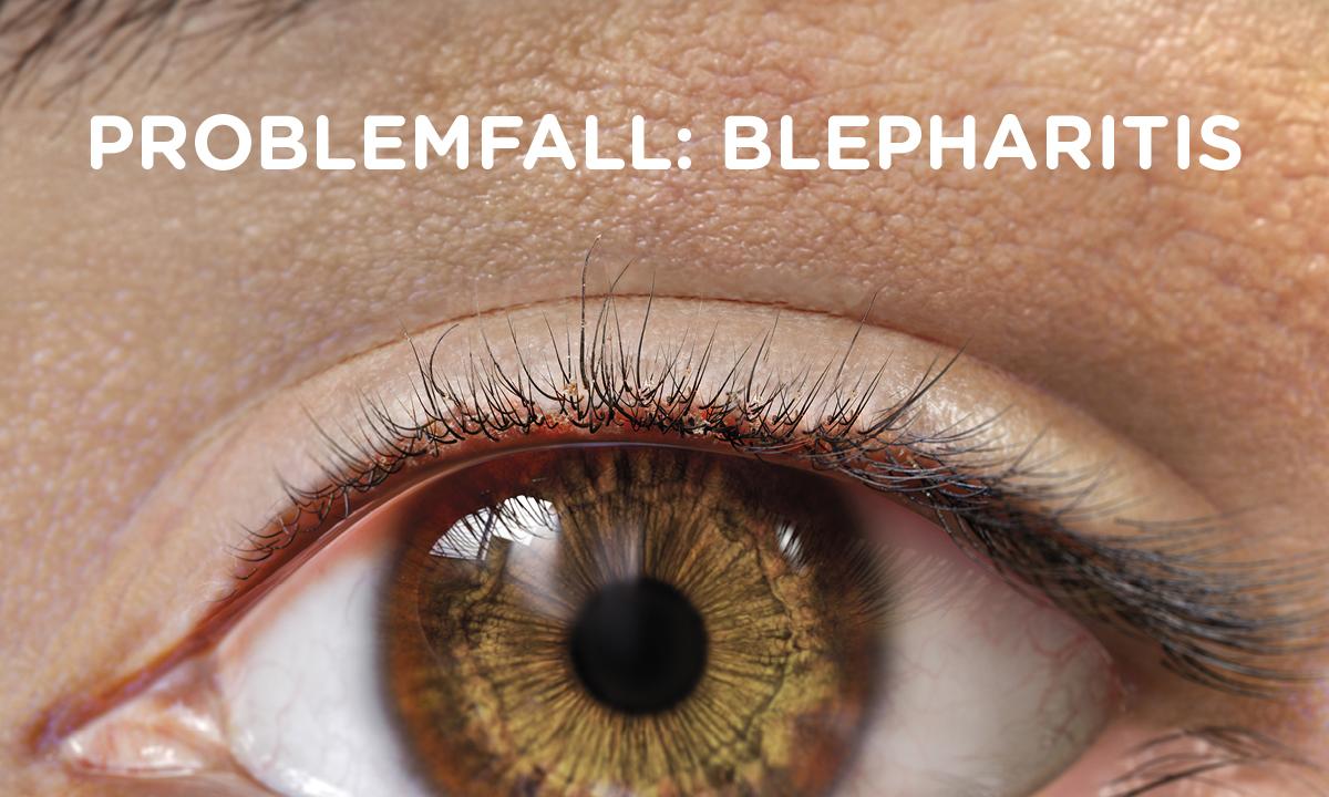 Problemfall Blepharitis und Blepharokonjunktivitis: mulitfaktoriell, oft chronisch und rezidivierend.