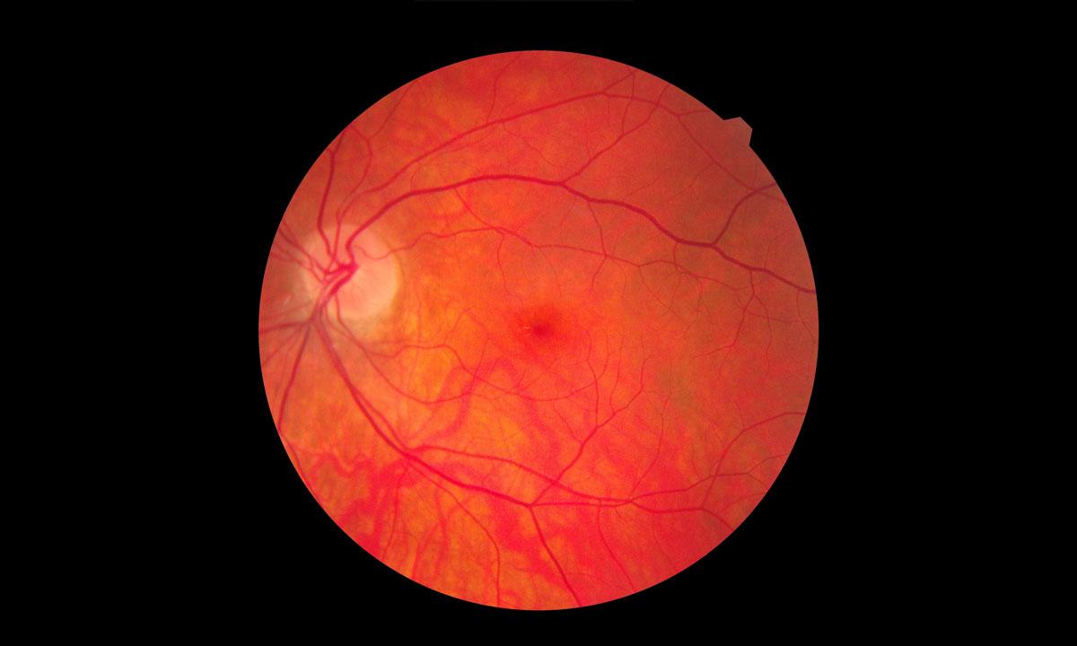 Brolucizumab und die okklusive retinale Vaskulitis