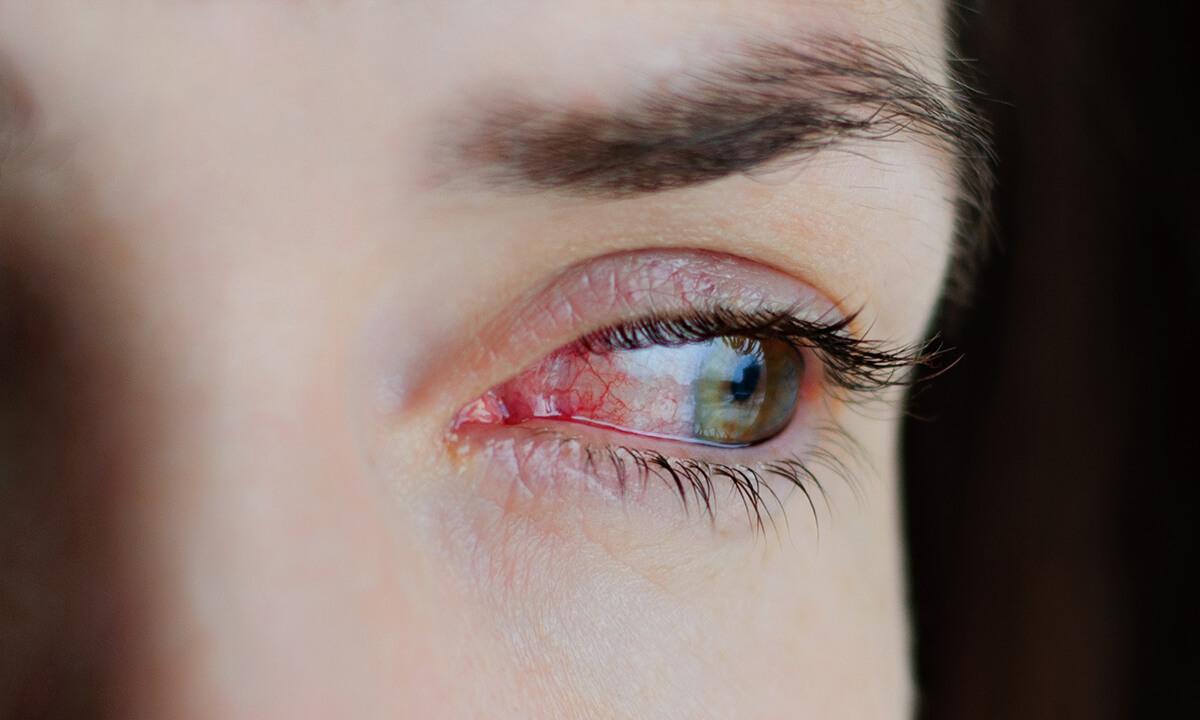 Rotes Auge – ein Symptom, viele Ursachen