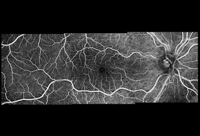 angiomodul_i%280%29Eyetec%20GmbH.jpg