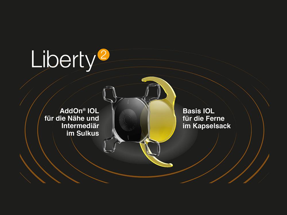 Liberty² – für mehr Brillenunabhängigkeit nach dem refraktiven Linsentausch