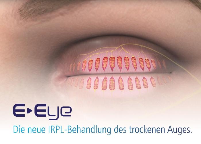Afidera E-Eye