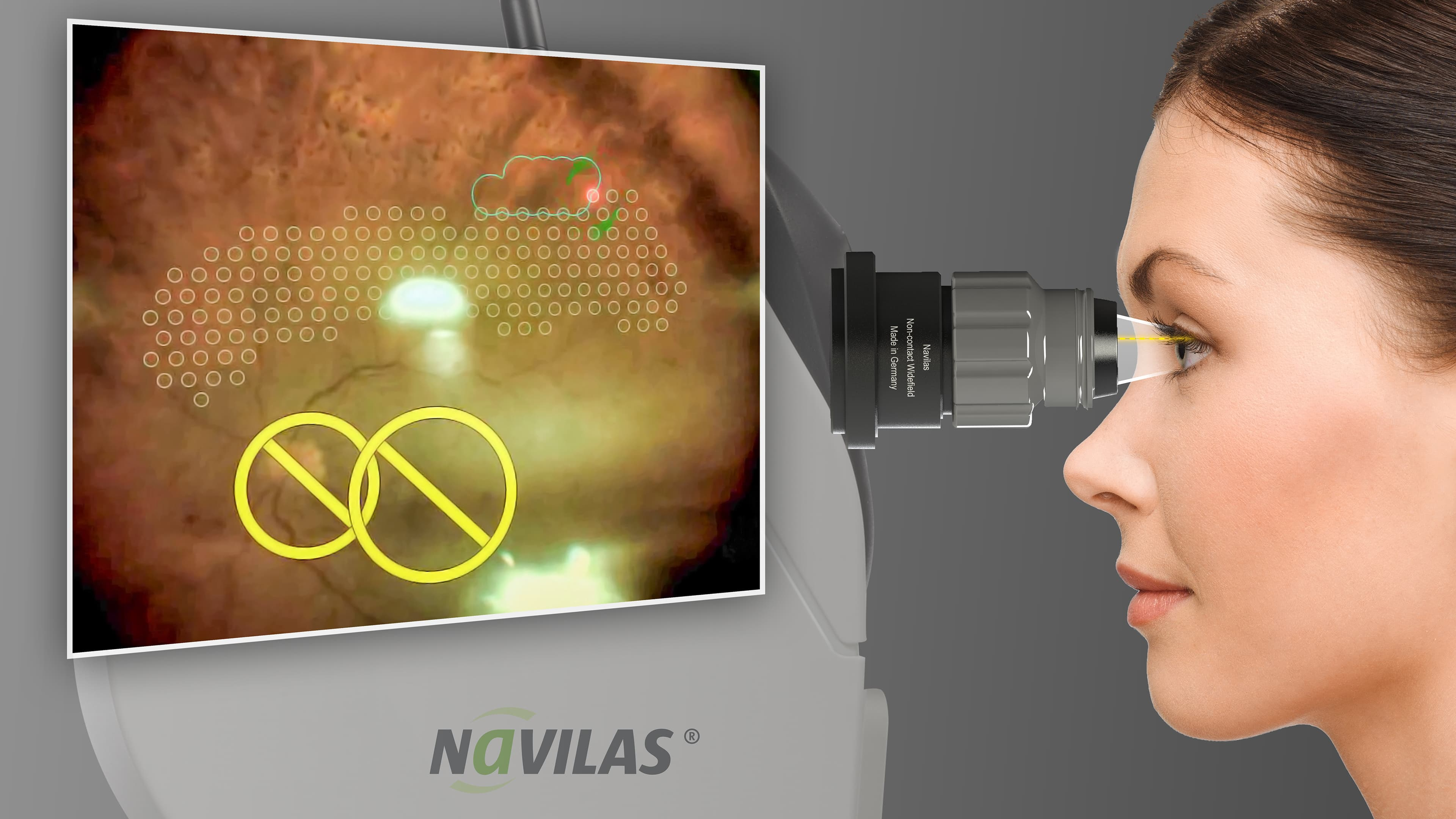 AAO 2018: Non-contact Panretinal Photocoagulation for Navilas® 577s Introduced
