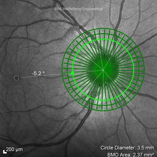 Glaucoma4-Fovea-01-HD-2.jpg