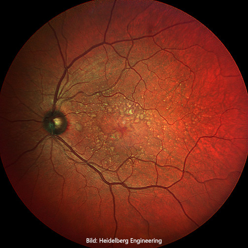 Widefiled_Fundus_3-MultiColor-HD-2.jpg