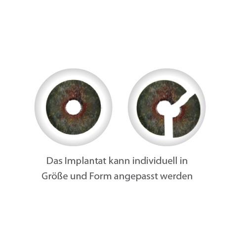 ARTIFICIALIRIS_Ubersicht_Implantat_2.jpg