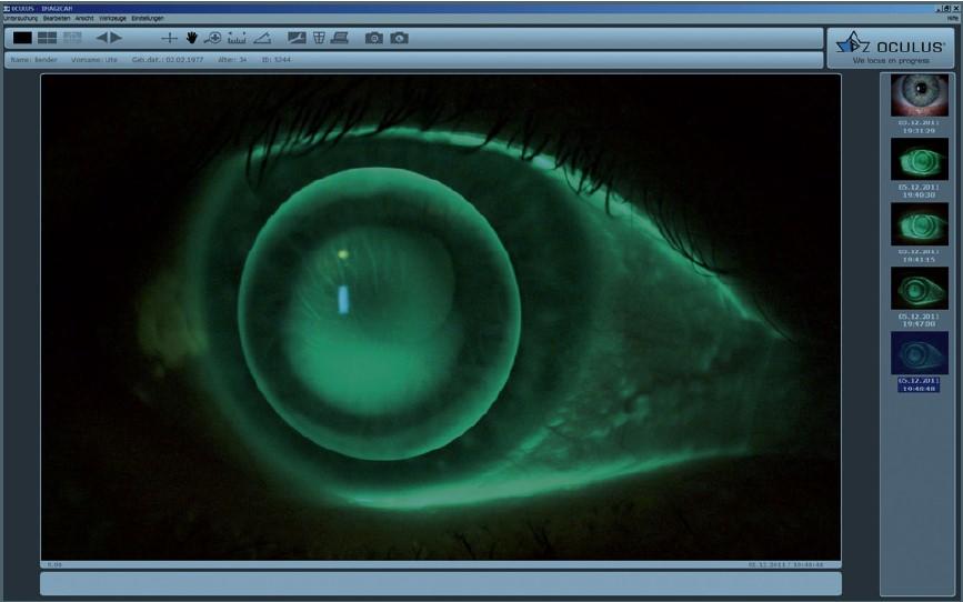 Einzelbildmodus - Fluobildaufnahme