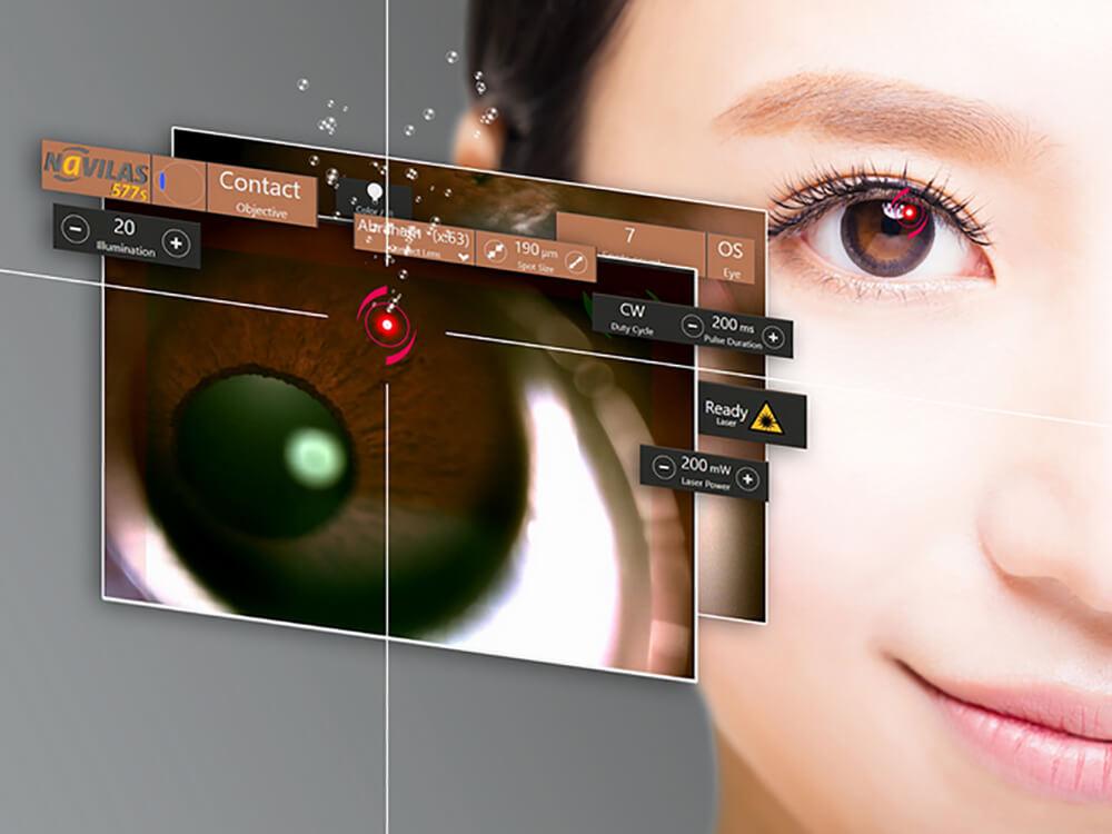 Neuer intuitiver Behandlungsmodus für Laser-Iridotomie mit dem Navilas® 577s Netzhautlaser