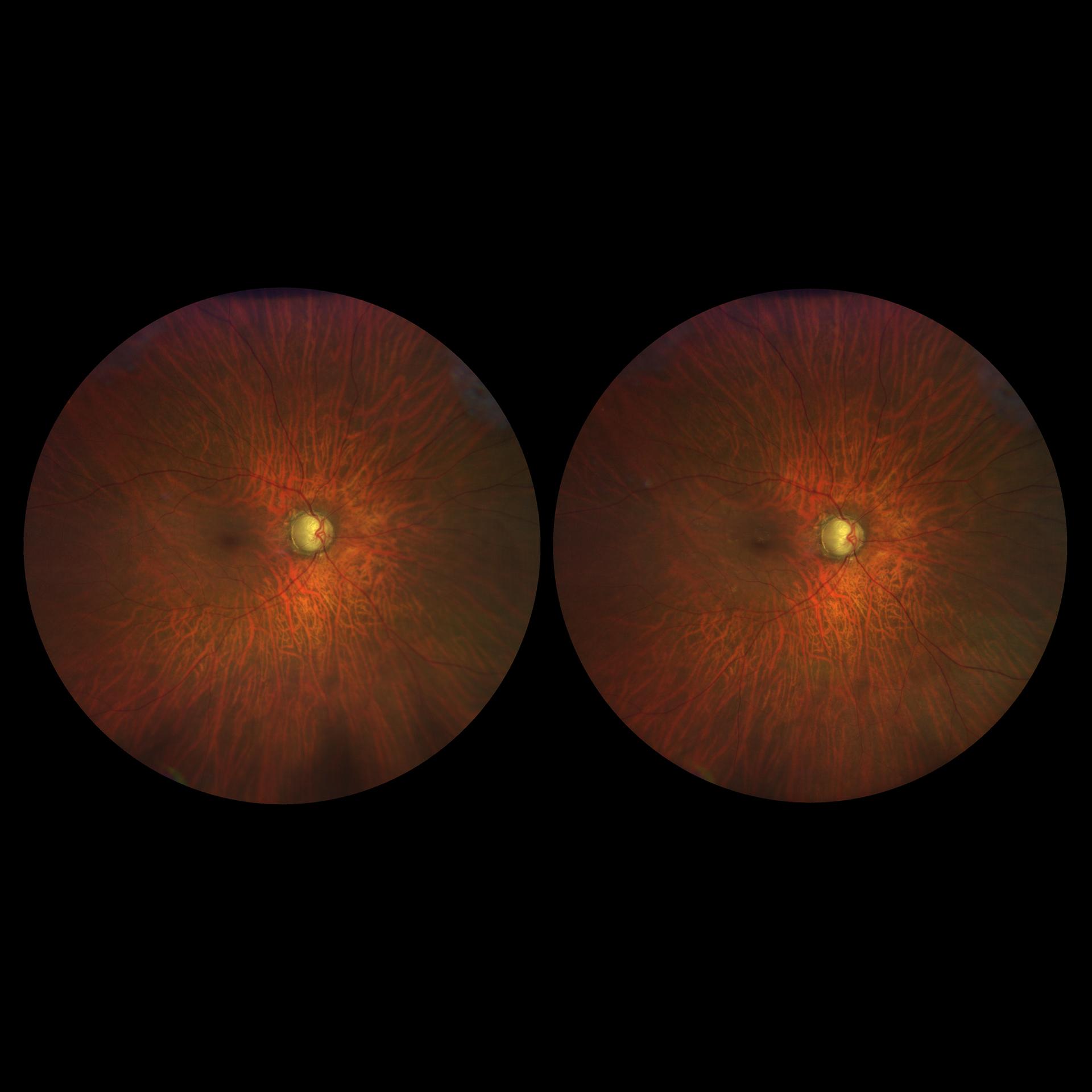 Fuerr die Stereoskopische Beurteilung des Fundus koennen Stereobildpaare aufgenommen werden.