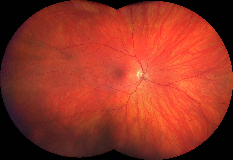 Ultra-Weitwinkelbild eines gesunden Auges
