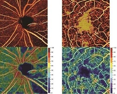 Bild OCT Angiographie